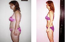 Woman Weight Loss Before and After in Bikini
